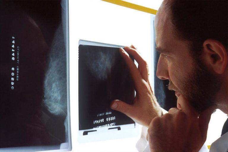 Zalety badania za pomocą tomografii komputerowej