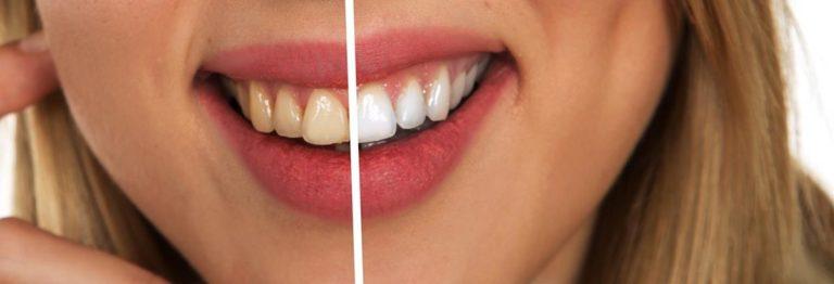 Wczesne wykrycie problemów z jamą ustną to łatwiejsze leczenie